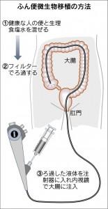 図は日経新聞Web2015年7月3日よりWeb上に発表されたもので、大腸内視鏡による移植)